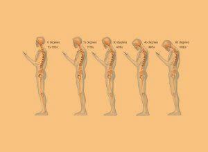 Physiotherapie Ergonomie douleur cervicale